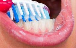 Toothbrushing Stock Image