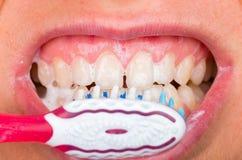Toothbrushing Royalty Free Stock Photo