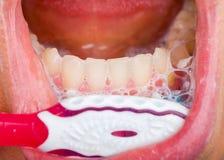 Toothbrushing Stock Photo