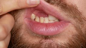 The toothless man laughs. A bearded man without teeth