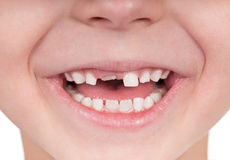 Toothless smile. Happy little girl or boy toothless smile close-up Stock Photos
