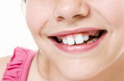 Toothless smile Stock Images