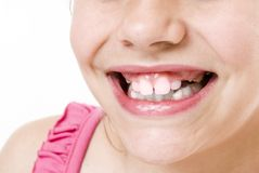 Toothless smile. Small girl toothless smile  close up Stock Photography