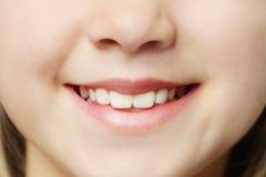 Toothy glimlach - lippen en tanden Stock Fotografie