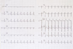 Top view of a complete electrocardiogram Stock Photos