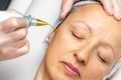 Free Top View Of Laser Plasma Pen Removing Facial Wart On Middle Aged Woman Stock Photo - 175407790
