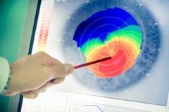 Topografia corneale fotografia stock libera da diritti