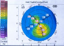 Topography of the cornea with an unpleasant diagnosis of keratoconus royalty free stock photos