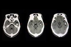 torbielowy rak mózgu obrazy royalty free