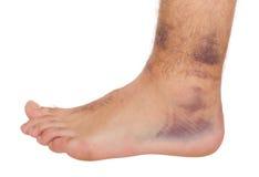 Torcedura do tornozelo Fotografia de Stock