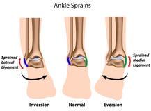 Torceduras do tornozelo Imagem de Stock