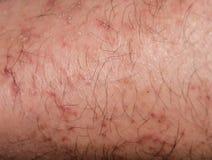 Torka att knäcka hud i vintern Arkivbild