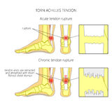 Torn Achilles tendon. Illustration of Skeletal ankle (side view and back view) with torn Achilles tendon. Used: Gradient, transparence, blend mode Royalty Free Stock Photo