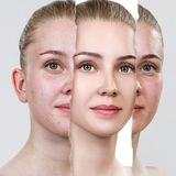 Compare of old photo with acne and new healthy skin. Torn old photo with acne skin. Woman before and after skin treatment stock image