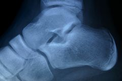 Tornozelo do raio X Foto de Stock Royalty Free