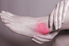 Tornozelo ferido Imagens de Stock