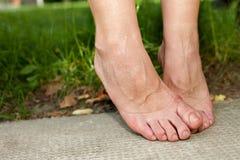 Tornozelos inchados e pés inchados fotografia de stock