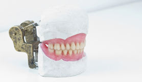 Total dental prosthesis from lateral view Royalty Free Stock Image
