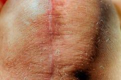 Total knee implants legs Stock Photo