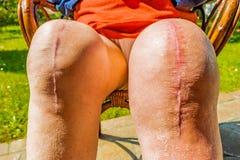 Total knee implants legs Stock Photography