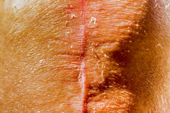 Total knee implants legs Royalty Free Stock Image