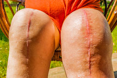 Total knee implants legs Royalty Free Stock Photos