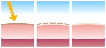 Tote Haut durch UV- und neue Haut wachsen heran Lizenzfreie Stockfotos