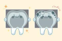 Toth avec le concept dentaire Image libre de droits