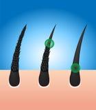 Tour endommagé de cheveux aux cheveux sains illustration stock