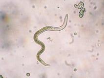 Toxocara犬属第二阶段幼虫从鸡蛋孵化 库存图片