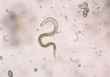 Toxocara canis second stage larvae hatch from eggs Stock Photos