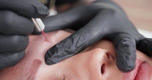Très étroitement tiré de la procédure du retrait de tatouage clips vidéos