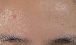 Trądzik na czole wazeliniarska skóra azjata kobieta Zamknięci comedones obrazy royalty free