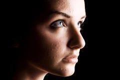 trądzika kobiety cierpiący Zdjęcie Stock