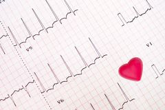 Traçage d'électrocardiogramme de coeur ischémique Images libres de droits