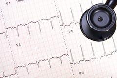 Traçage d'électrocardiogramme de coeur ischémique Image libre de droits