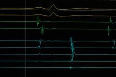 Traçage de cardiodiagram de coeur Photo libre de droits