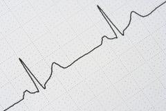 Traço do pulso Imagem de Stock