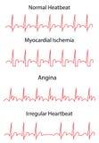 Tracce di elettrocardiogramma di normale e di patologie Fotografia Stock Libera da Diritti