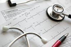 Cardiogram e stetoscopio immagine stock