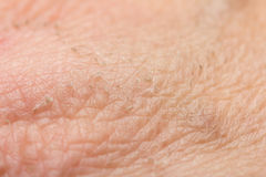 Traces of burns on the skin. Royalty Free Stock Photos