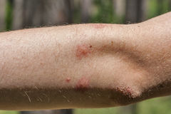 Traces of mosquito bites on the human elbow Stock Image