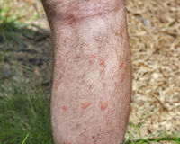 Traces of mosquito bites on the human leg Royalty Free Stock Images