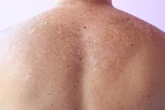 Traces of sunburn on the back of a man. Human skin after sunbathing. Traces of sunburn on the back of a man. The consequence of excessive sunburn Royalty Free Stock Photography