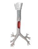 Trachea - sistema polmonare Immagine Stock