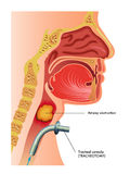 Tracheotomy. Medical illustration of a surgical tracheotomy Royalty Free Stock Photography