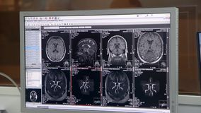 Tracking of a CT scan with on dark background stock footage