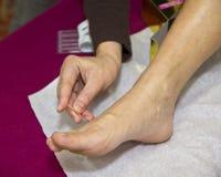 tradycyjna chińska akupunktury medycyna Zdjęcie Royalty Free
