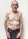 Tragender Herzmonitor des alten Mannes Stockbilder