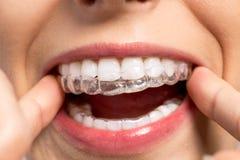 Tragender orthodontischer Silikontrainer Stockbilder